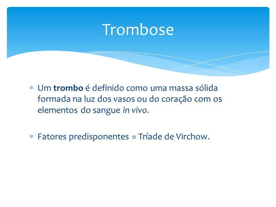 Trombose Um trombo é definido como uma massa sólida formada na luz dos vasos ou do coração com os elementos do sangue in vivo.
