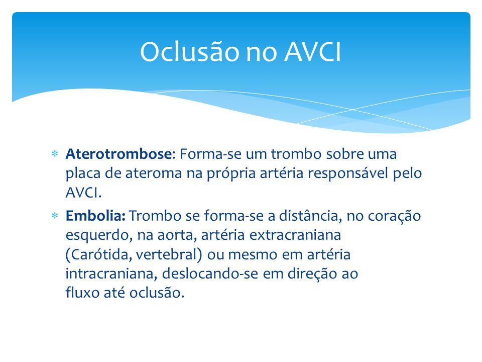 Oclusão no AVCI Aterotrombose: Forma-se um trombo sobre uma placa de ateroma na própria artéria responsável pelo AVCI.