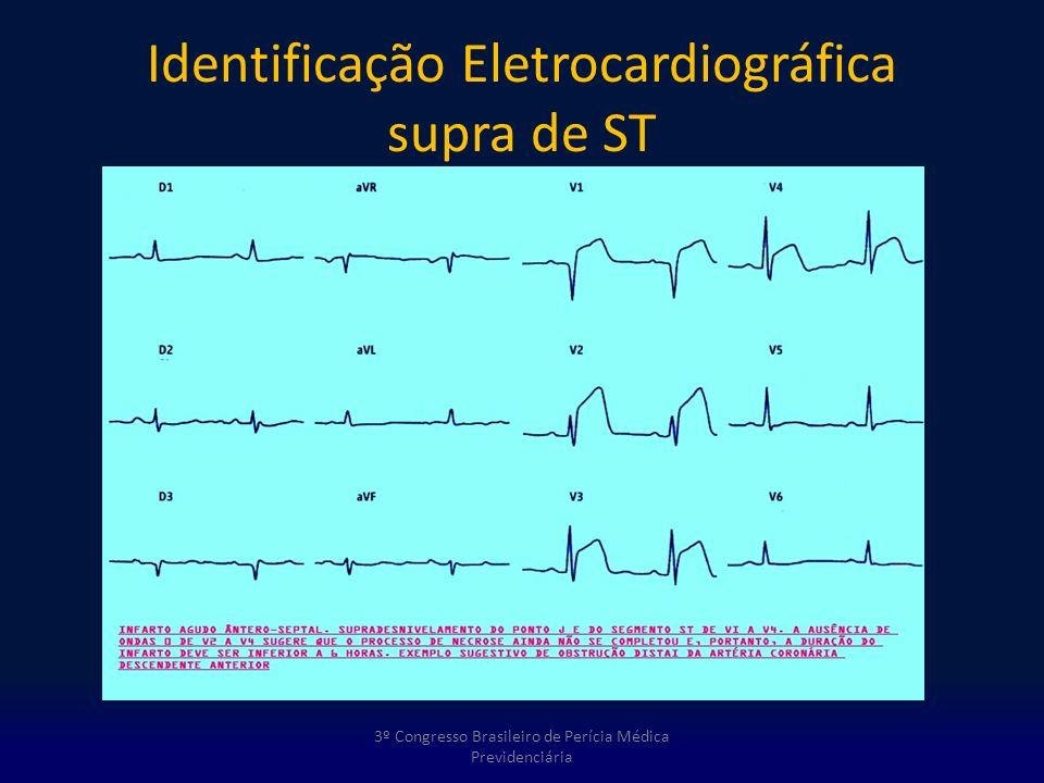 Identificação Eletrocardiográfica supra de ST