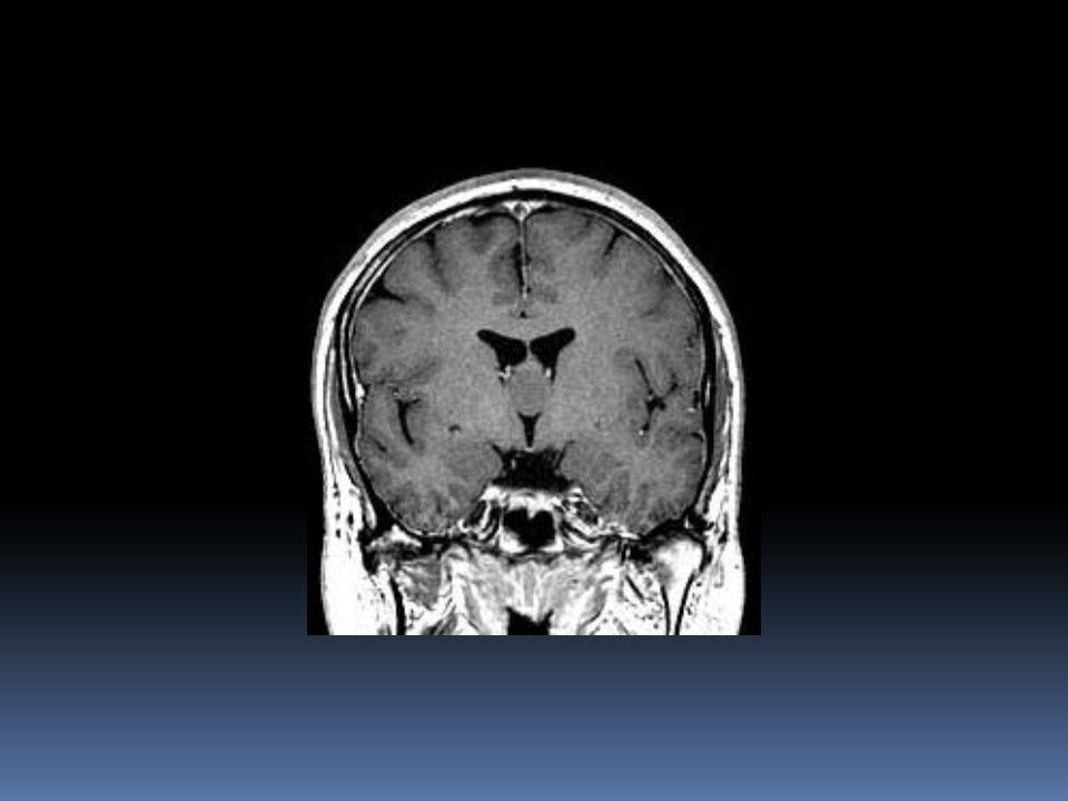 Dilatação ventricular secundária a lesão da linha média e obstrução do fluxo do líquido cefalorradiano