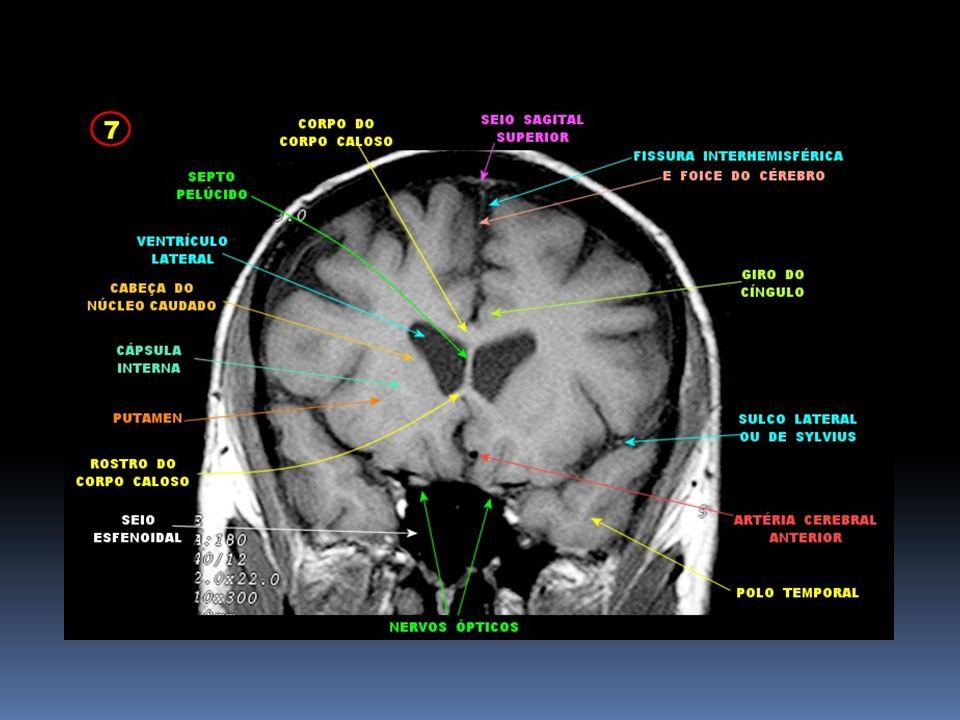 RNM corte coronal em ponderação T1