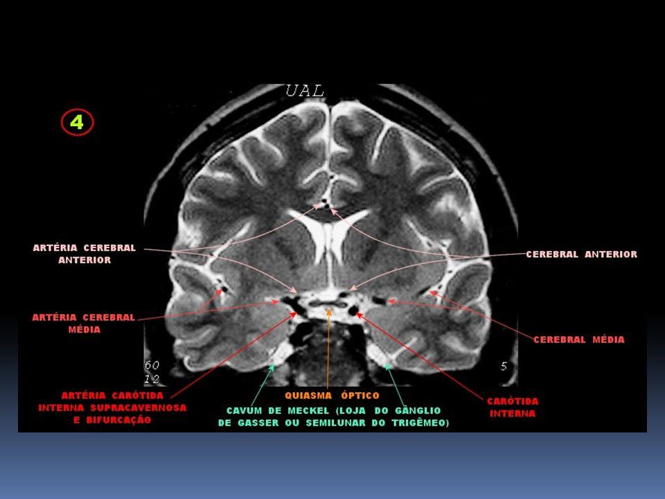 RNM em ponderação T2. Destaque para sulcos, ventrículos e cisternas.