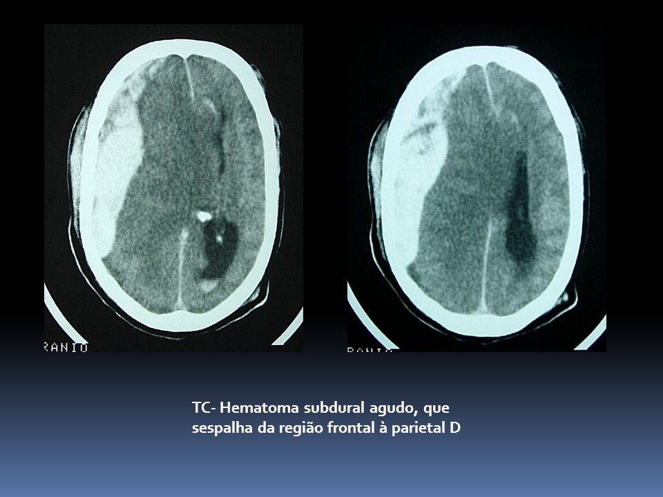 TC- Hematoma subdural agudo, que sespalha da região frontal à parietal D