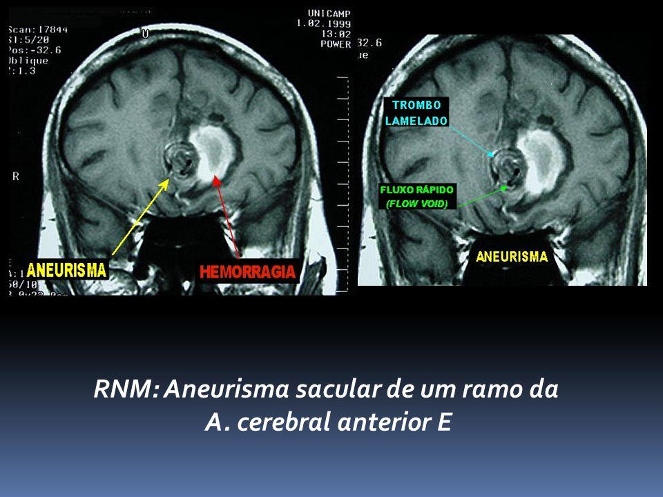 RNM: Aneurisma sacular de um ramo da A. cerebral anterior E