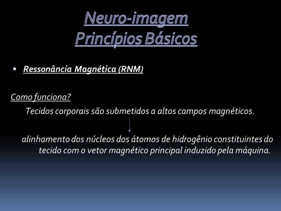 Neuro-imagem Princípios Básicos Ressonância Magnética (RNM)