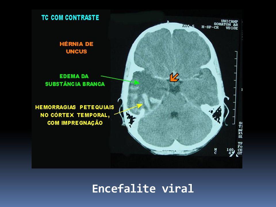Encefalite viral