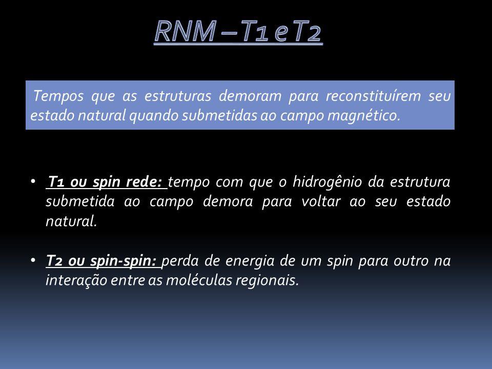 RNM – T1 e T2 Tempos que as estruturas demoram para reconstituírem seu estado natural quando submetidas ao campo magnético.