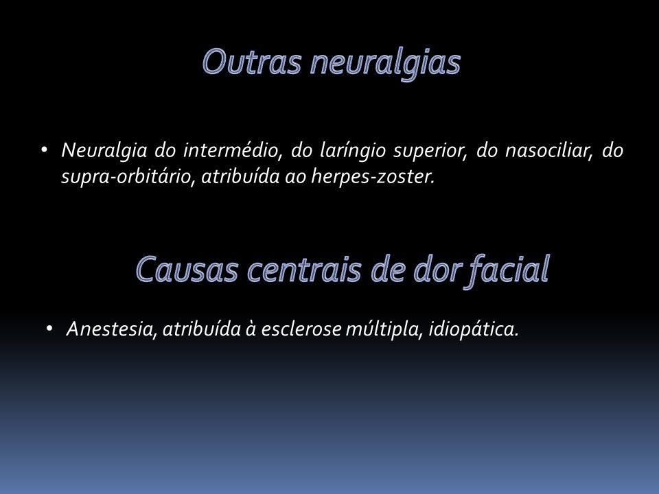 Causas centrais de dor facial