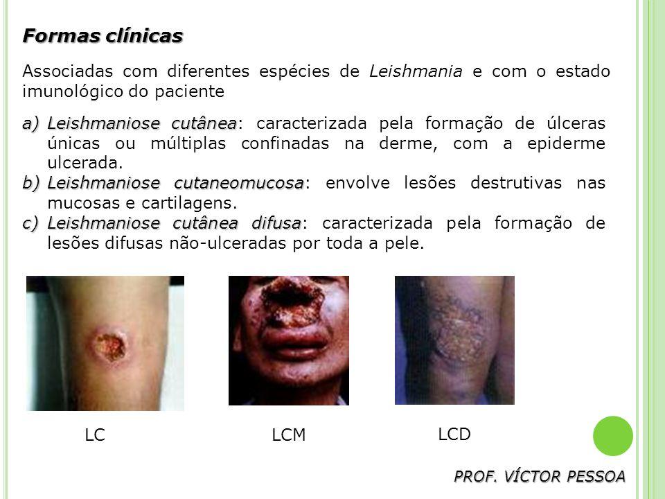 Formas clínicas Associadas com diferentes espécies de Leishmania e com o estado imunológico do paciente.