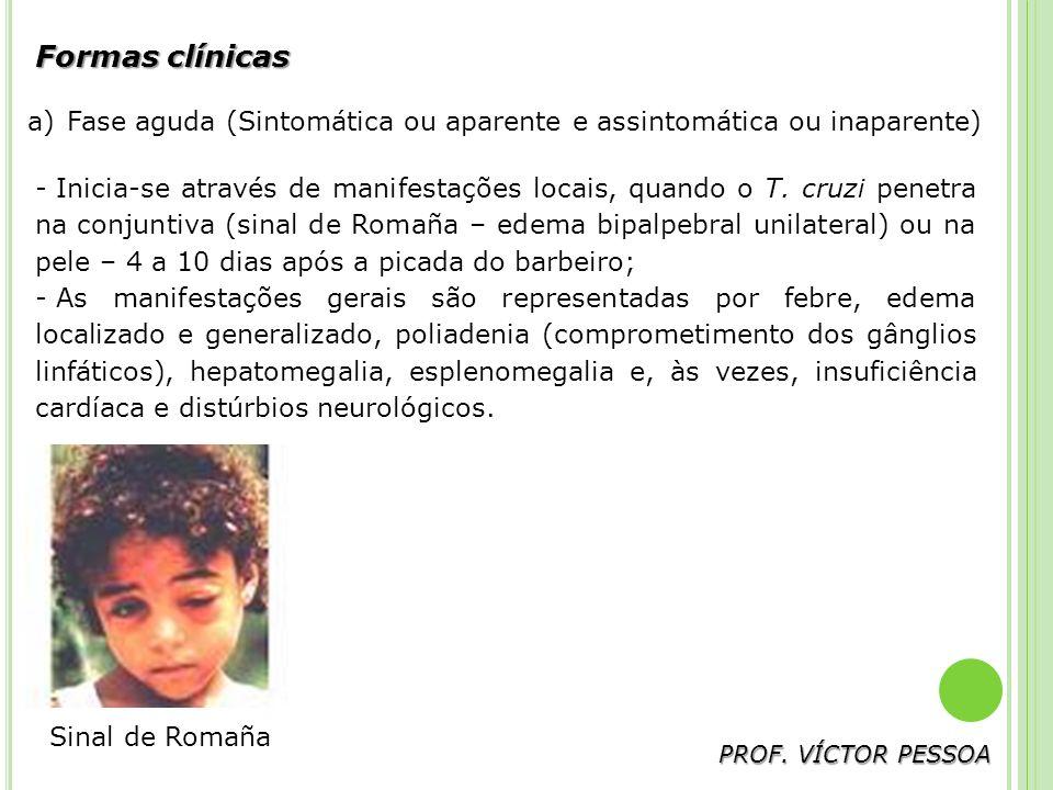 Formas clínicas Fase aguda (Sintomática ou aparente e assintomática ou inaparente)
