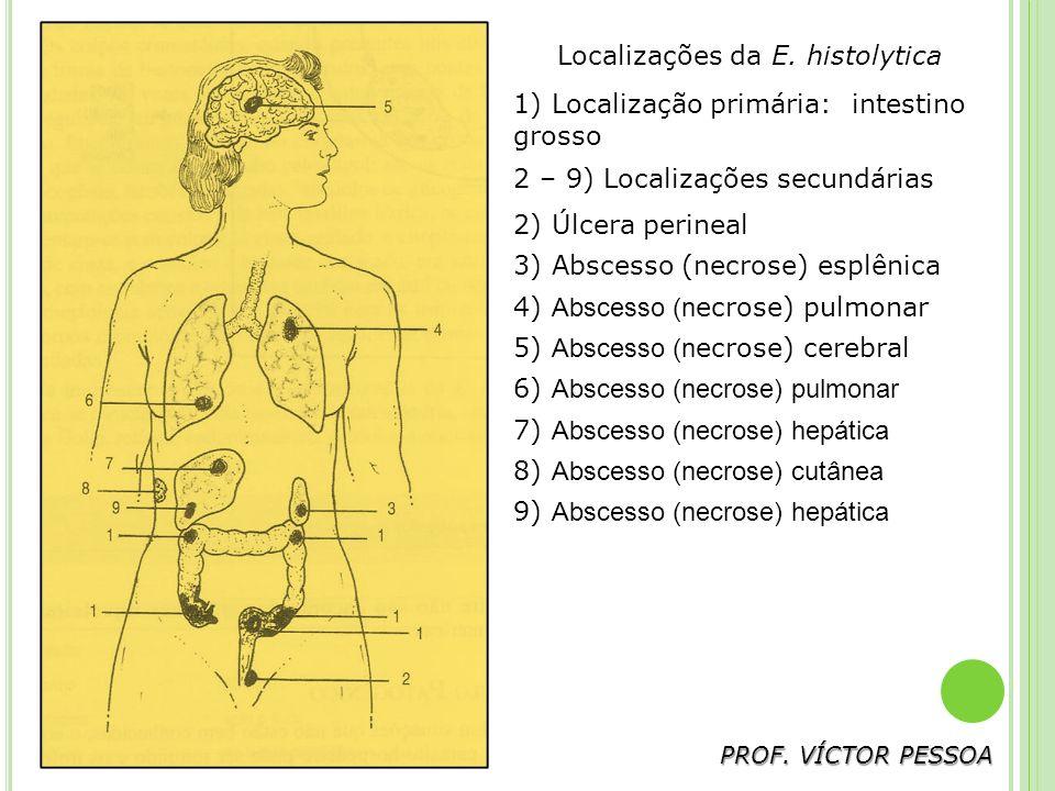 Localizações da E. histolytica