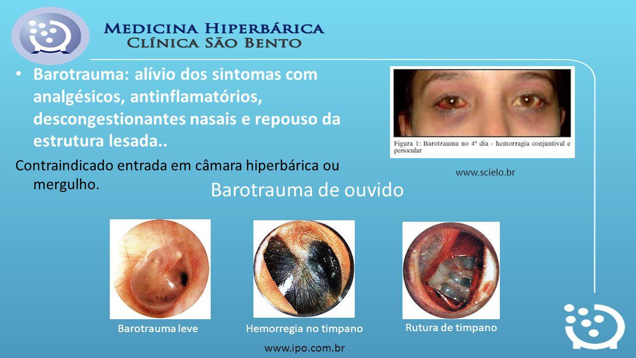 Barotrauma: alívio dos sintomas com analgésicos, antinflamatórios, descongestionantes nasais e repouso da estrutura lesada..
