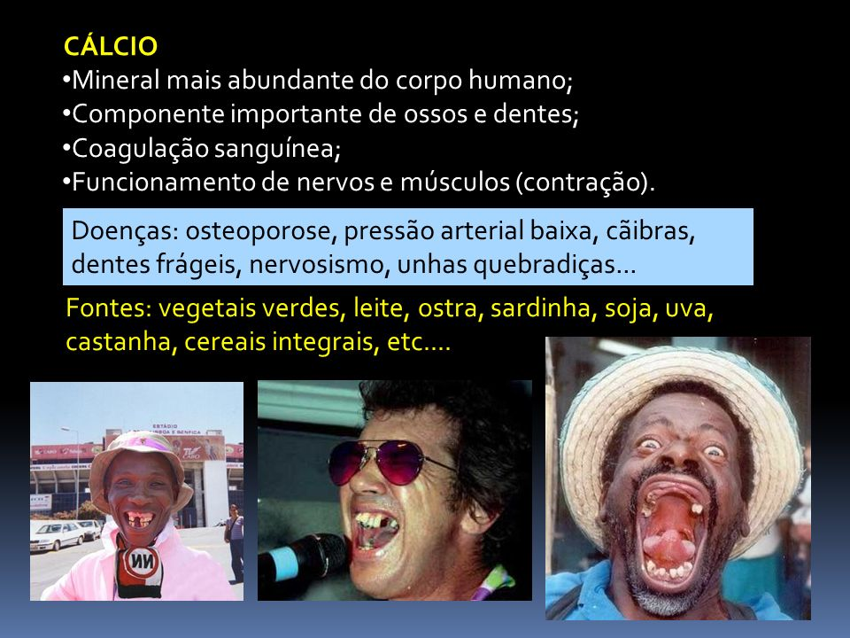 CÁLCIO Mineral mais abundante do corpo humano; Componente importante de ossos e dentes; Coagulação sanguínea;