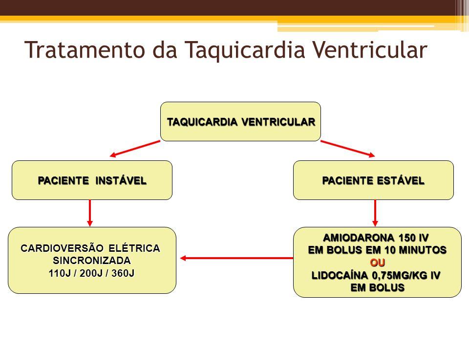 Tratamento da Taquicardia Ventricular