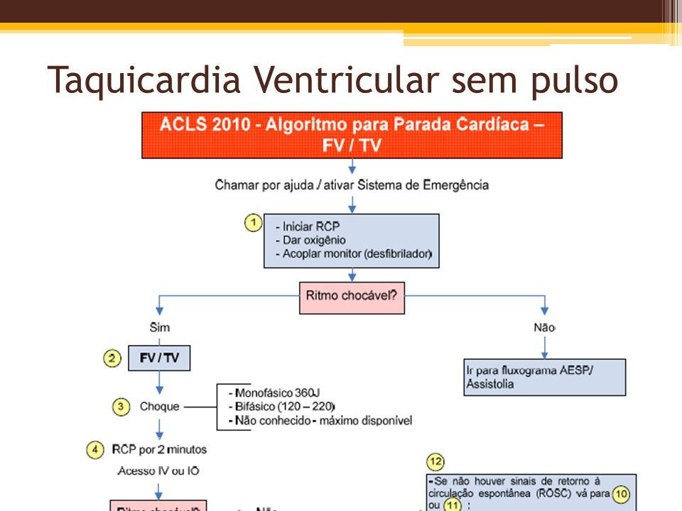 Taquicardia Ventricular sem pulso