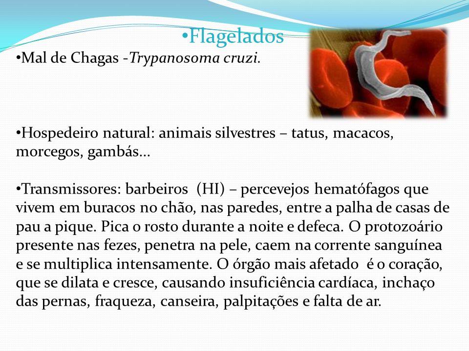 Flagelados Mal de Chagas -Trypanosoma cruzi.