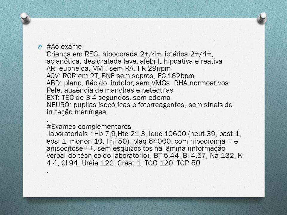 #Ao exame Criança em REG, hipocorada 2+/4+, ictérica 2+/4+, acianótica, desidratada leve, afebril, hipoativa e reativa AR: eupneica, MVF, sem RA, FR 29irpm ACV: RCR em 2T, BNF sem sopros, FC 162bpm ABD: plano, flácido, indolor, sem VMGs, RHA normoativos Pele: ausência de manchas e petéquias EXT: TEC de 3-4 segundos, sem edema NEURO: pupilas isocóricas e fotorreagentes, sem sinais de irritação meníngea .