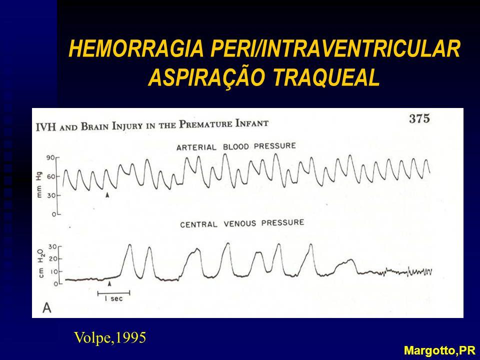 HEMORRAGIA PERI/INTRAVENTRICULAR ASPIRAÇÃO TRAQUEAL