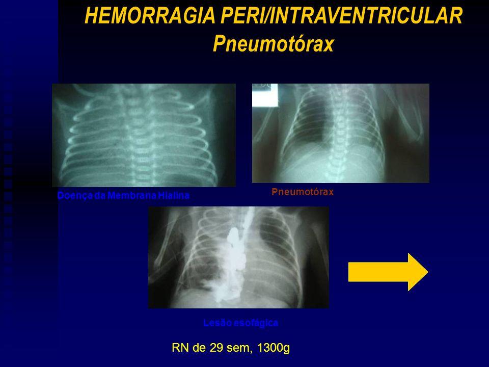 HEMORRAGIA PERI/INTRAVENTRICULAR Pneumotórax