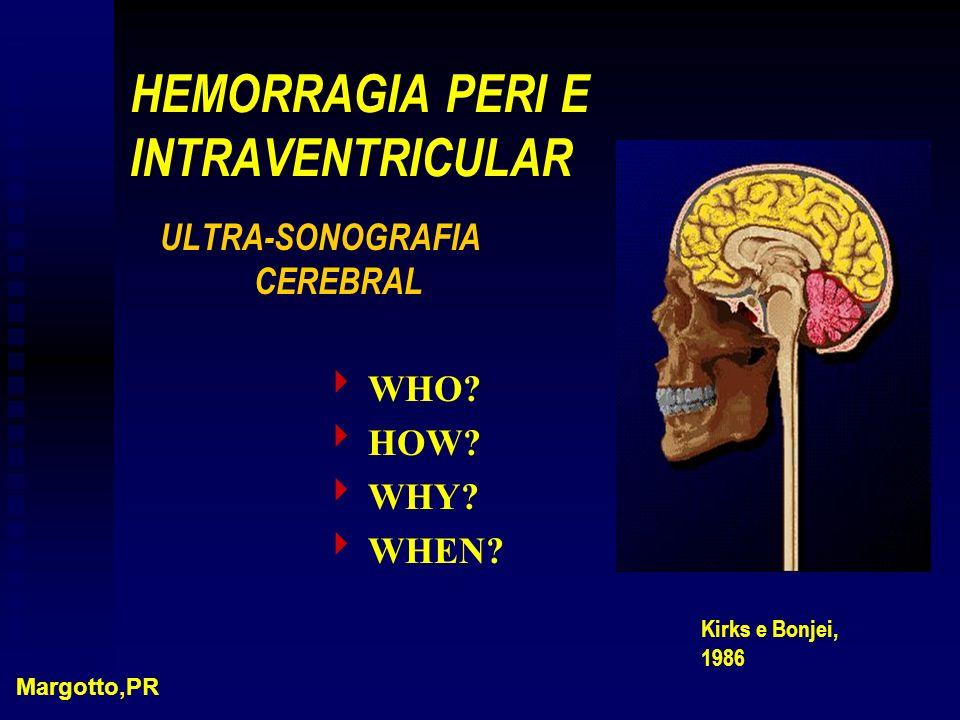 HEMORRAGIA PERI E INTRAVENTRICULAR
