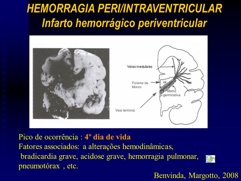 HEMORRAGIA PERI/INTRAVENTRICULAR Infarto hemorrágico periventricular