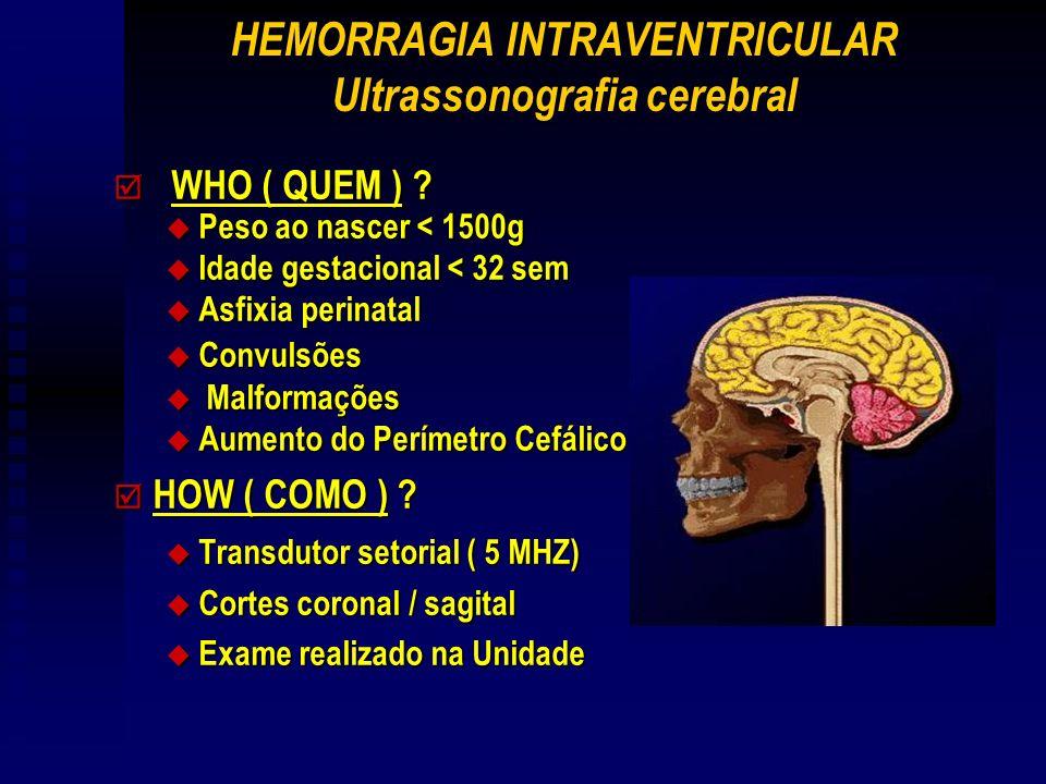 HEMORRAGIA INTRAVENTRICULAR Ultrassonografia cerebral