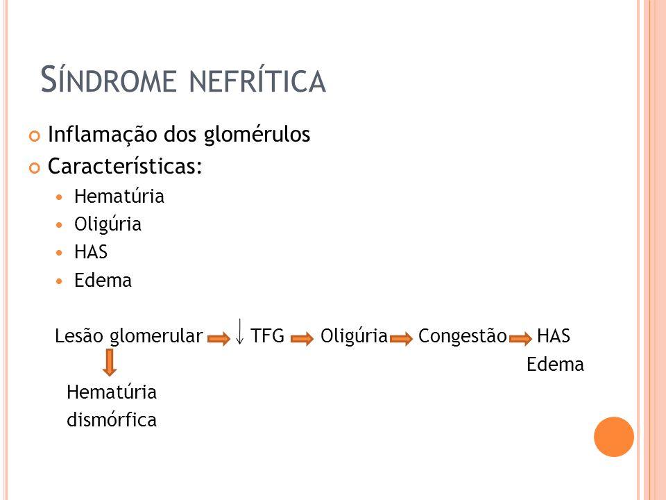 Síndrome nefrítica Inflamação dos glomérulos Características: