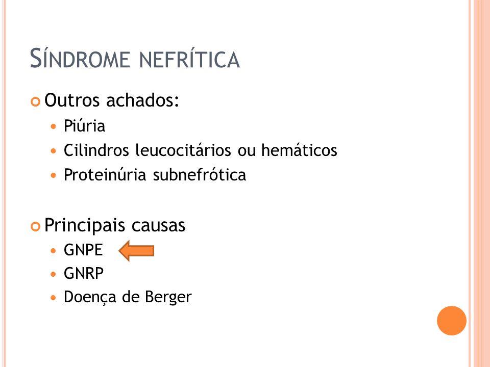 Síndrome nefrítica Outros achados: Principais causas Piúria