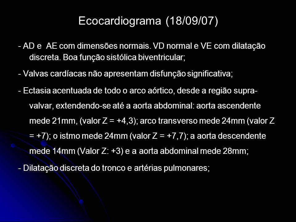 Ecocardiograma (18/09/07) - AD e AE com dimensões normais. VD normal e VE com dilatação discreta. Boa função sistólica biventricular;