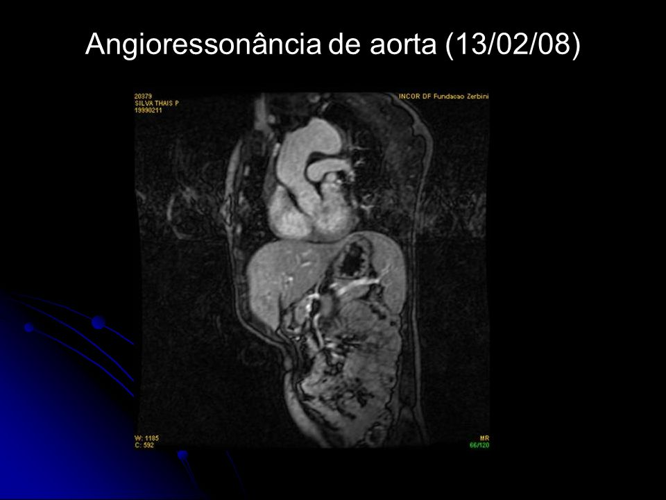 Angioressonância de aorta (13/02/08)