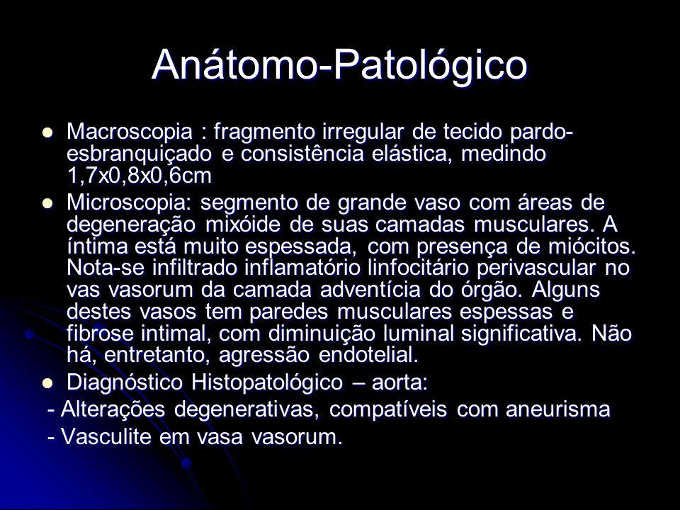Anátomo-Patológico Macroscopia : fragmento irregular de tecido pardo-esbranquiçado e consistência elástica, medindo 1,7x0,8x0,6cm.