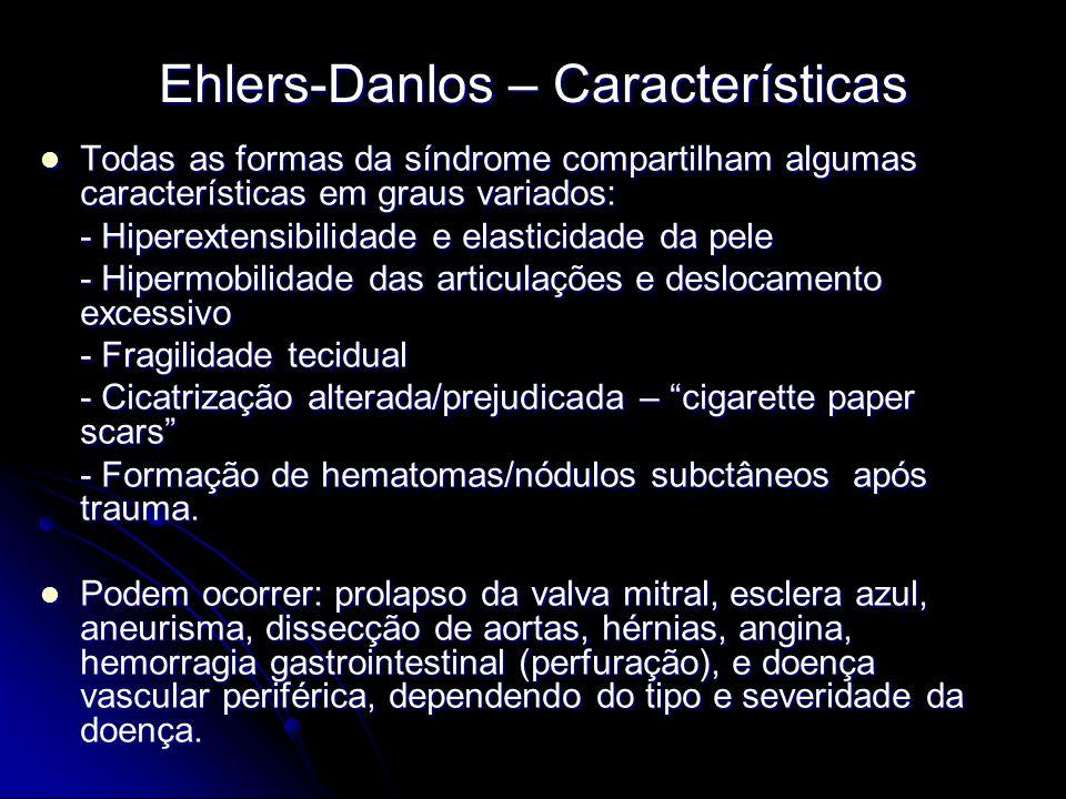 Ehlers-Danlos – Características