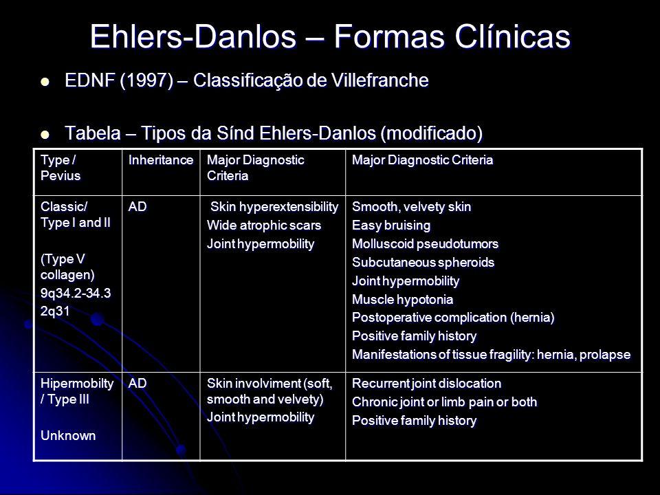 Ehlers-Danlos – Formas Clínicas