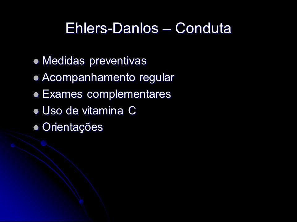 Ehlers-Danlos – Conduta