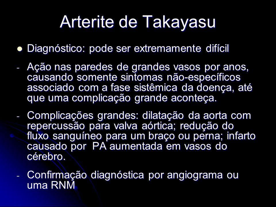 Arterite de Takayasu Diagnóstico: pode ser extremamente difícil