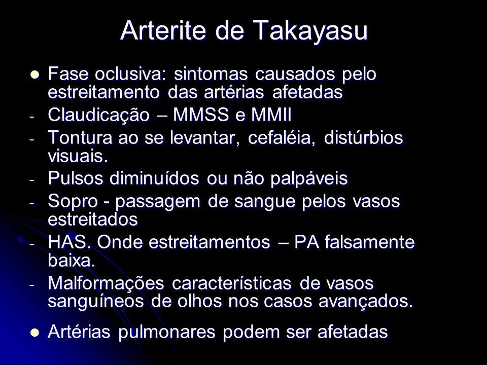 Arterite de Takayasu Fase oclusiva: sintomas causados pelo estreitamento das artérias afetadas. Claudicação – MMSS e MMII.