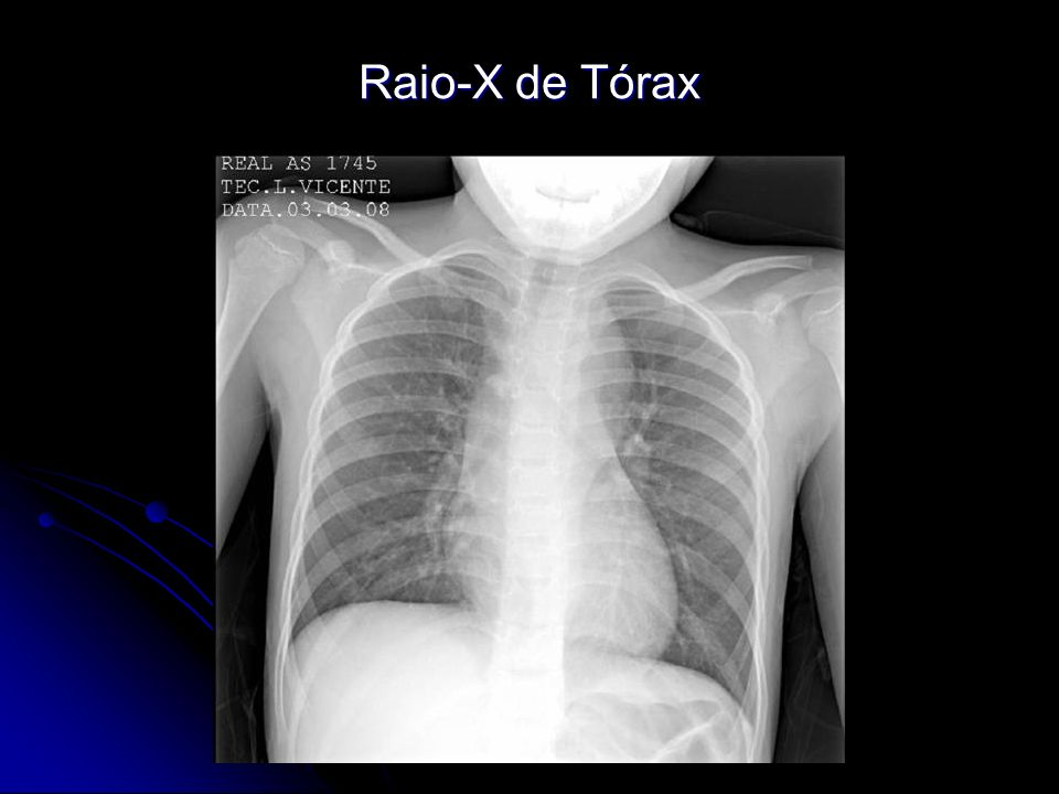 Raio-X de Tórax