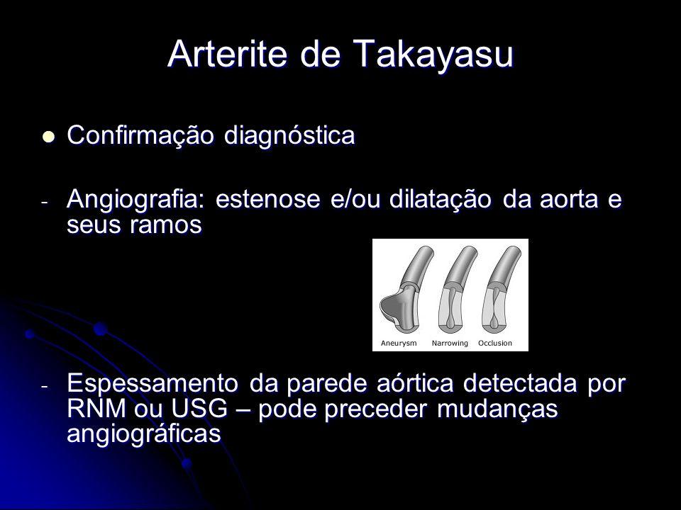 Arterite de Takayasu Confirmação diagnóstica