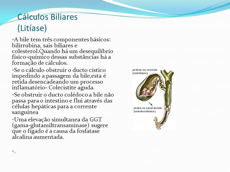 Cálculos Biliares (Litíase)