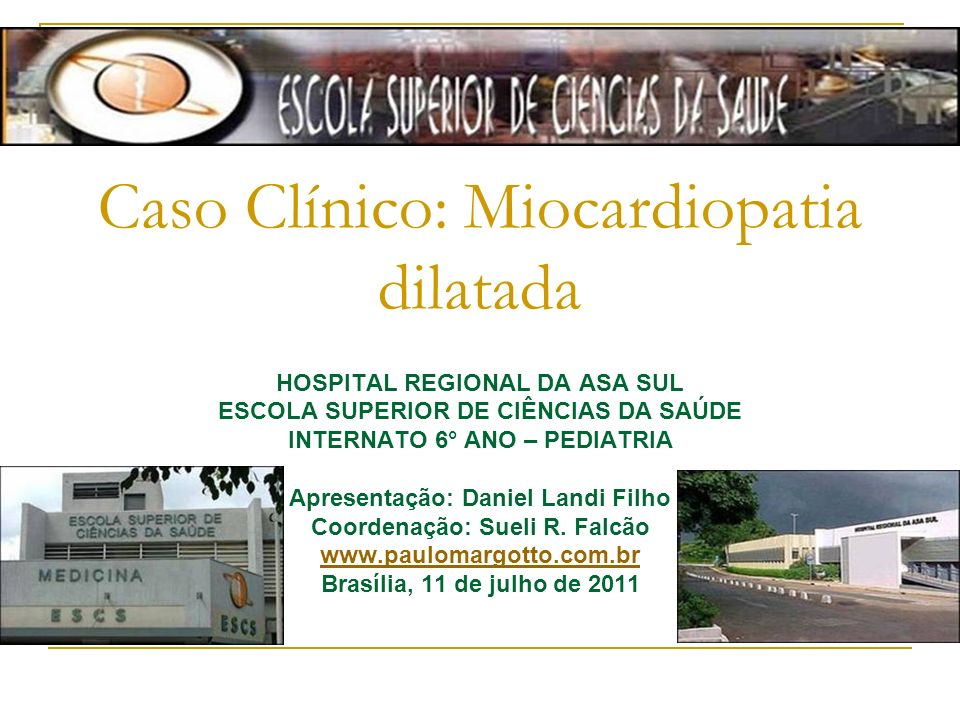 Caso Clínico: Miocardiopatia dilatada