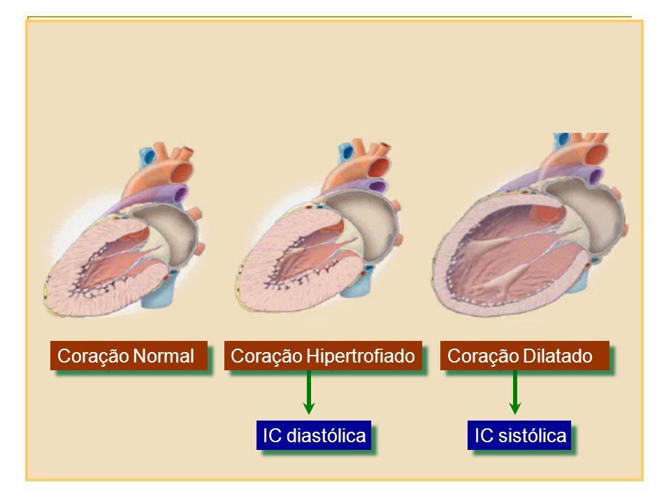 Coração Normal Coração Hipertrofiado Coração Dilatado IC diastólica IC sistólica