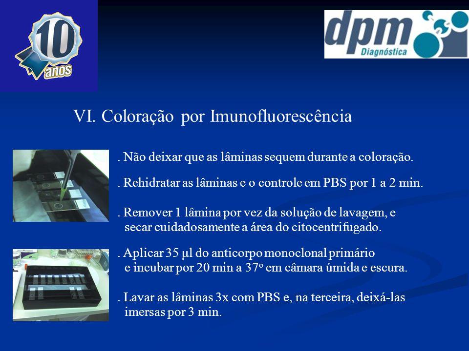 VI. Coloração por Imunofluorescência