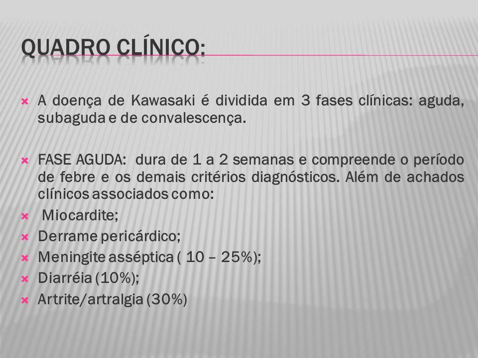 Quadro clínico: A doença de Kawasaki é dividida em 3 fases clínicas: aguda, subaguda e de convalescença.