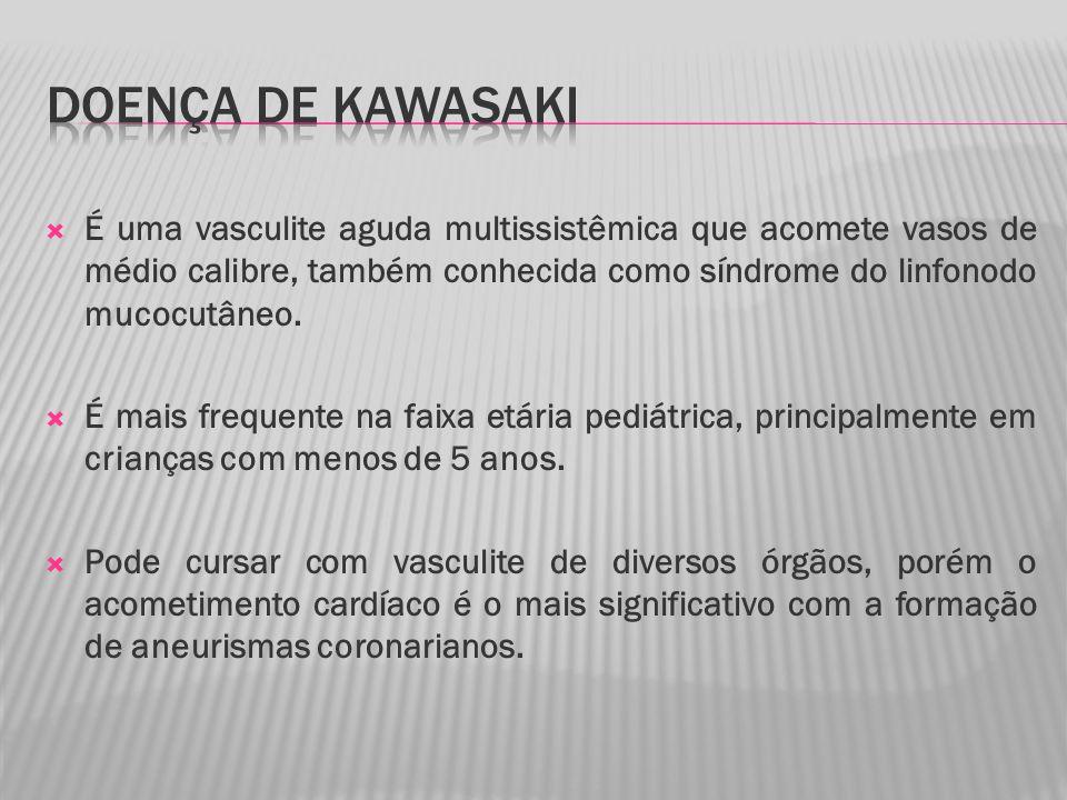 DOENÇA DE KAWASAKI É uma vasculite aguda multissistêmica que acomete vasos de médio calibre, também conhecida como síndrome do linfonodo mucocutâneo.