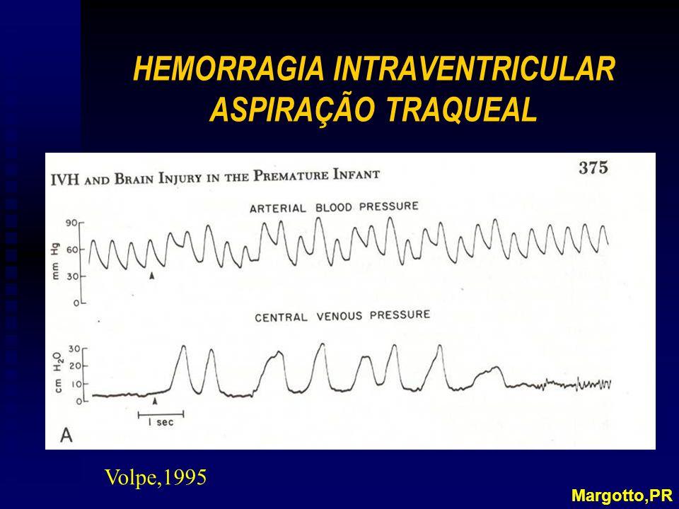 HEMORRAGIA INTRAVENTRICULAR ASPIRAÇÃO TRAQUEAL
