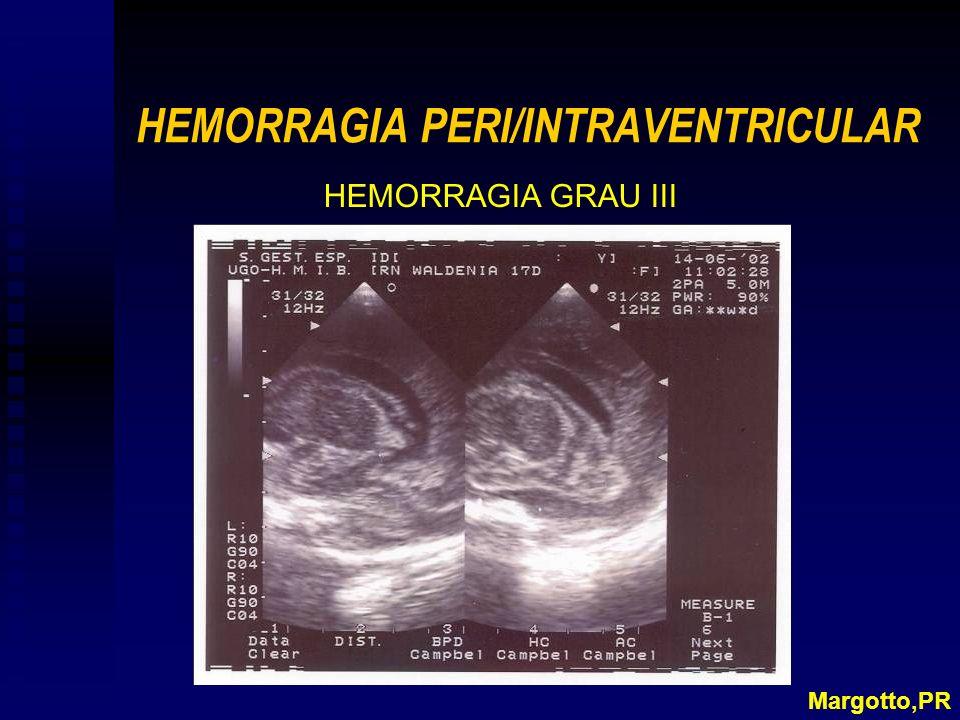 HEMORRAGIA PERI/INTRAVENTRICULAR
