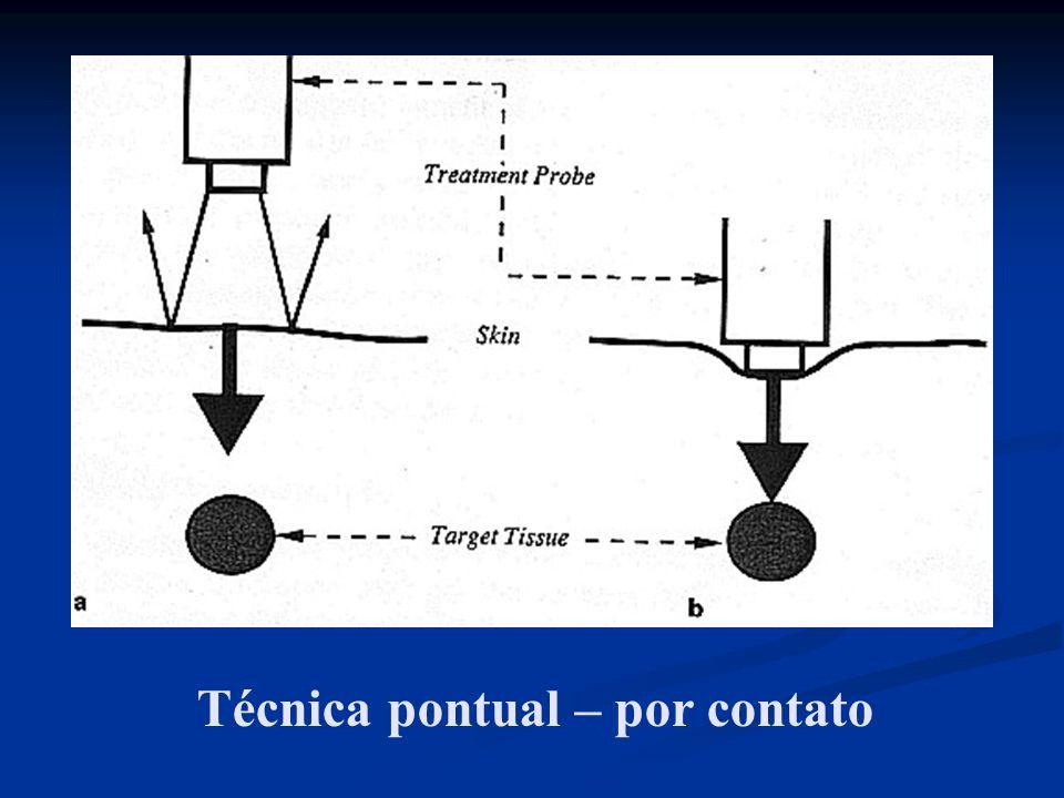 Técnica pontual – por contato