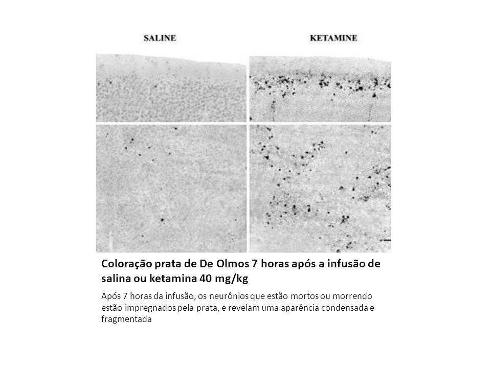Coloração prata de De Olmos 7 horas após a infusão de salina ou ketamina 40 mg/kg