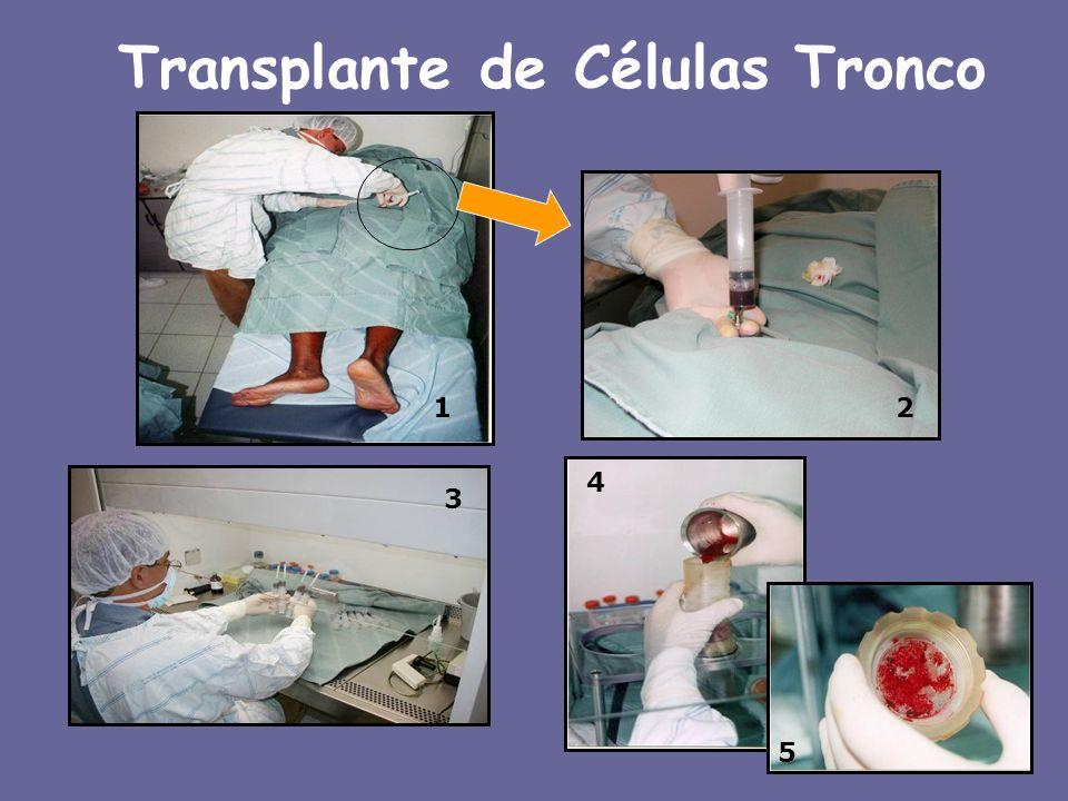 Transplante de Células Tronco