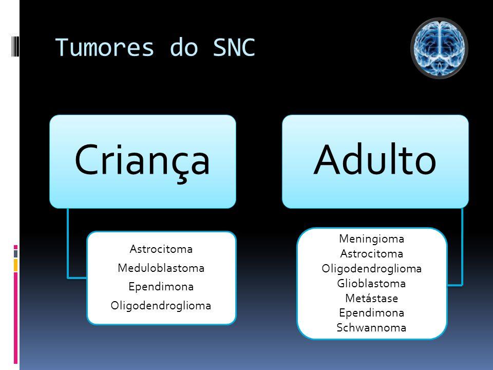 Criança Adulto Tumores do SNC Astrocitoma Meduloblastoma Ependimona